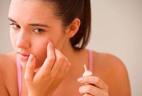 Usando simples truques é possível esconder espinha com maquiagem e apresentar um rosto radiante por onde você passar (Foto: Divulgação)